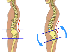 AP therapies can aid in the aligning of your spine to reduce back pain